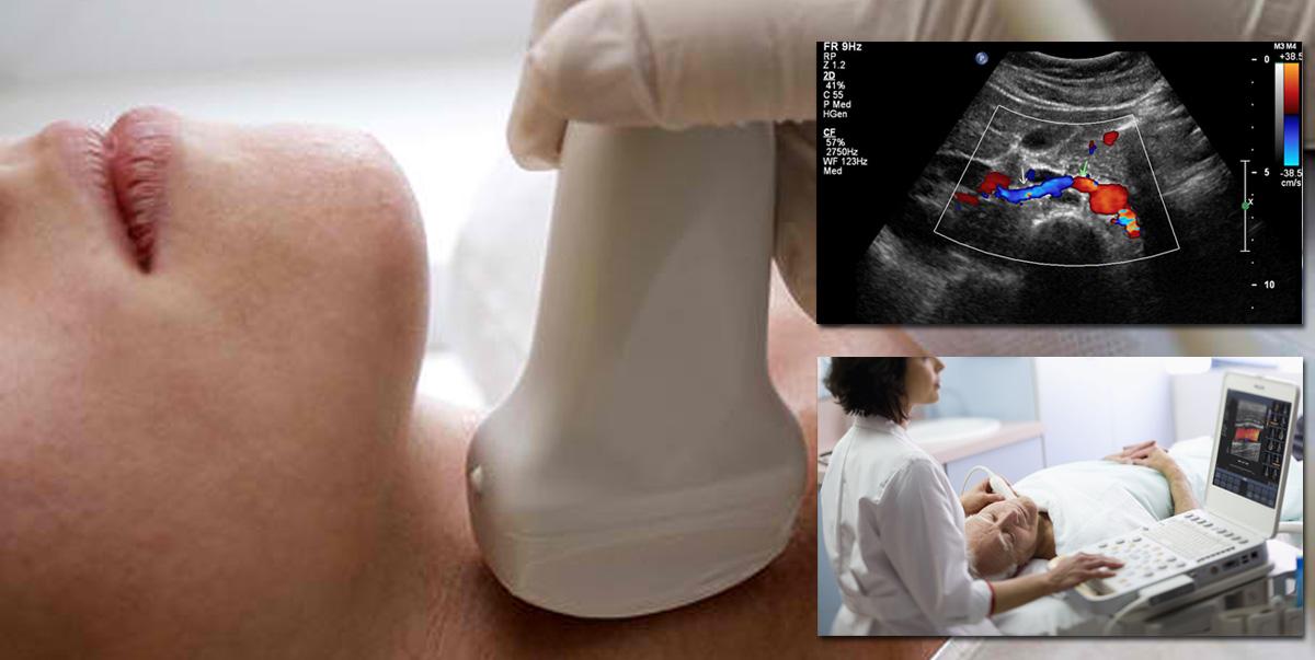 Dopplers Artério-veineux et recherche de phlébite